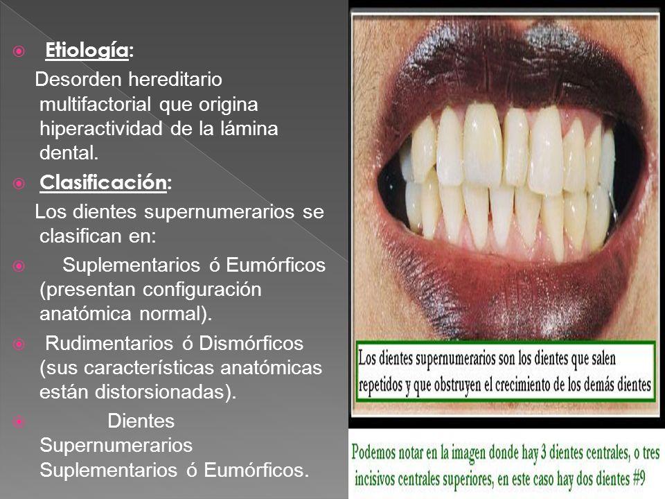 Etiología: Desorden hereditario multifactorial que origina hiperactividad de la lámina dental. Clasificación: Los dientes supernumerarios se clasifica
