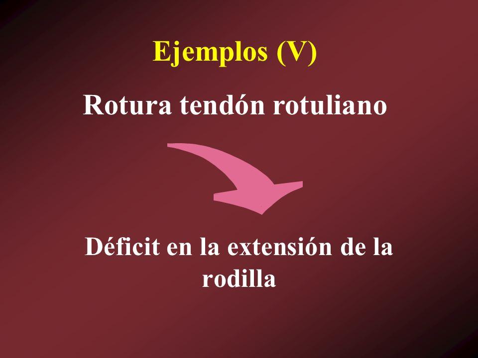 Ejemplos (V) Déficit en la extensión de la rodilla Rotura tendón rotuliano