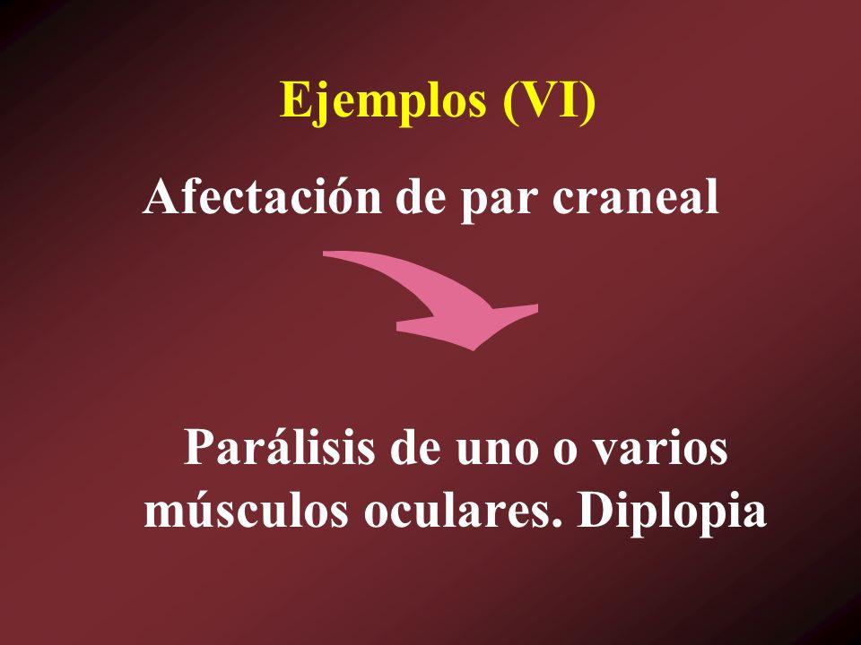 Ejemplos (VI) Parálisis de uno o varios músculos oculares. Diplopia Afectación de par craneal