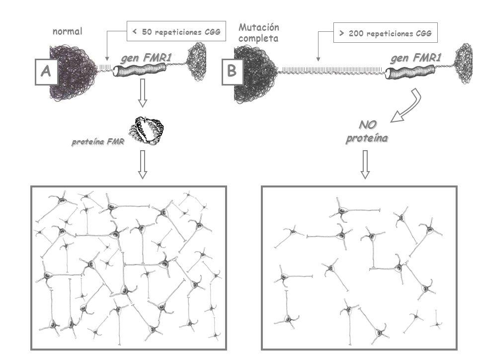 gen FMR1 normal < 50 repeticiones CGG proteína FMR gen FMR1 Mutación completa > 200 repeticiones CGG NOproteína AB