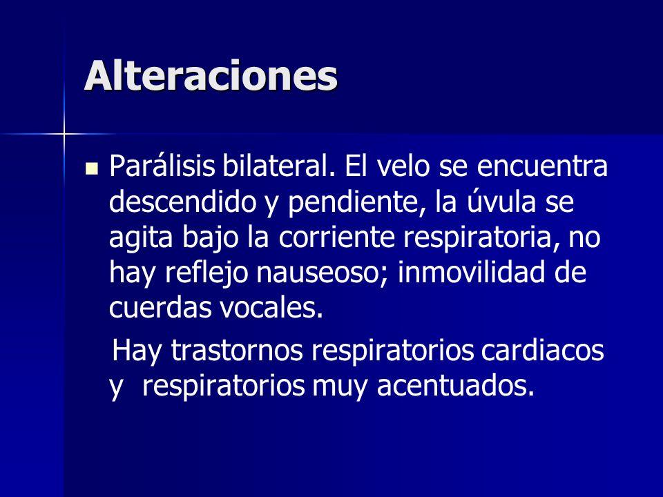 Alteraciones Parálisis bilateral. El velo se encuentra descendido y pendiente, la úvula se agita bajo la corriente respiratoria, no hay reflejo nauseo