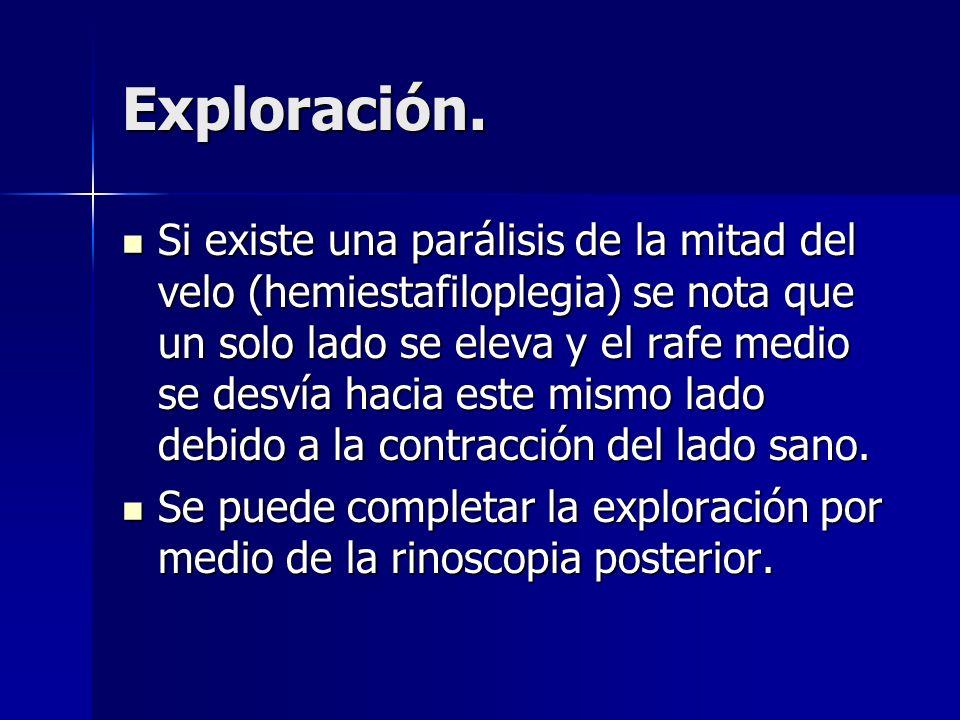 Exploración. Si existe una parálisis de la mitad del velo (hemiestafiloplegia) se nota que un solo lado se eleva y el rafe medio se desvía hacia este