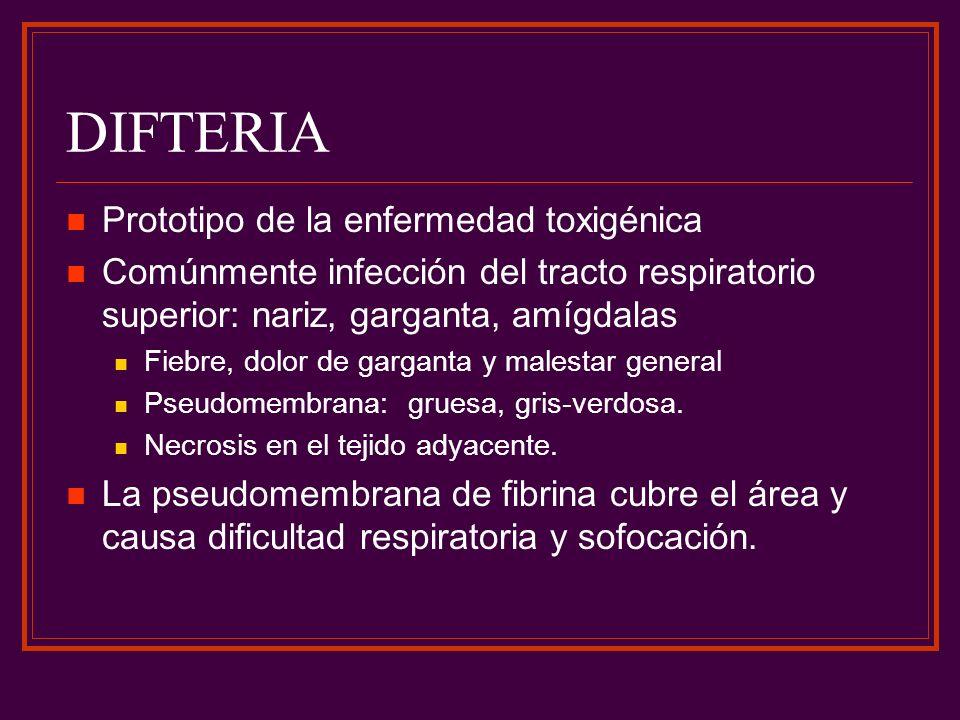 DIFTERIA Prototipo de la enfermedad toxigénica Comúnmente infección del tracto respiratorio superior: nariz, garganta, amígdalas Fiebre, dolor de garg