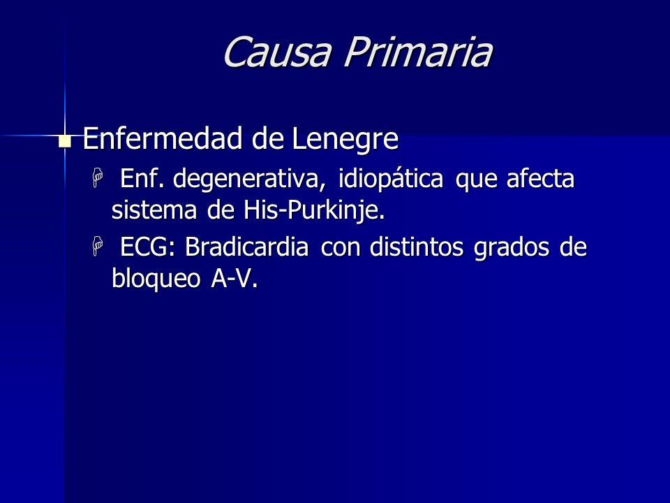 Causas Primarias Sme. de taqui-bradi Sme. de taqui-bradi H Episodios de taquiarritmia con períodos de baja frec. auricular o ventric. H Causa degenera