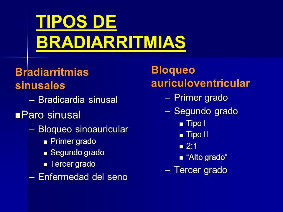Causas Secundarias OTRAS Miocarditis. Miocarditis. Enfermedades reumatológicas (AR, polimiositis, Sme. Sjogren) Enfermedades reumatológicas (AR, polim
