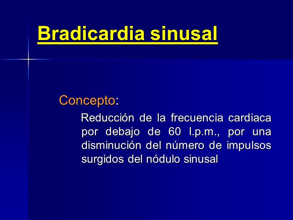TIPOS DE BRADIARRITMIAS Bradiarritmias sinusales –Bradicardia sinusal Paro sinusal Paro sinusal –Bloqueo sinoauricular Primer grado Primer grado Segun