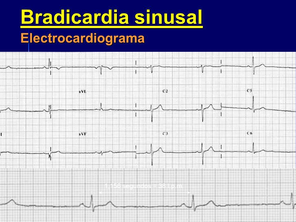 Bradicardia sinusal –Síntomas En casos de bradicardias sinusales extremas pueden aparecer síntomas de bajo gasto cardiaco. En casos de bradicardias si