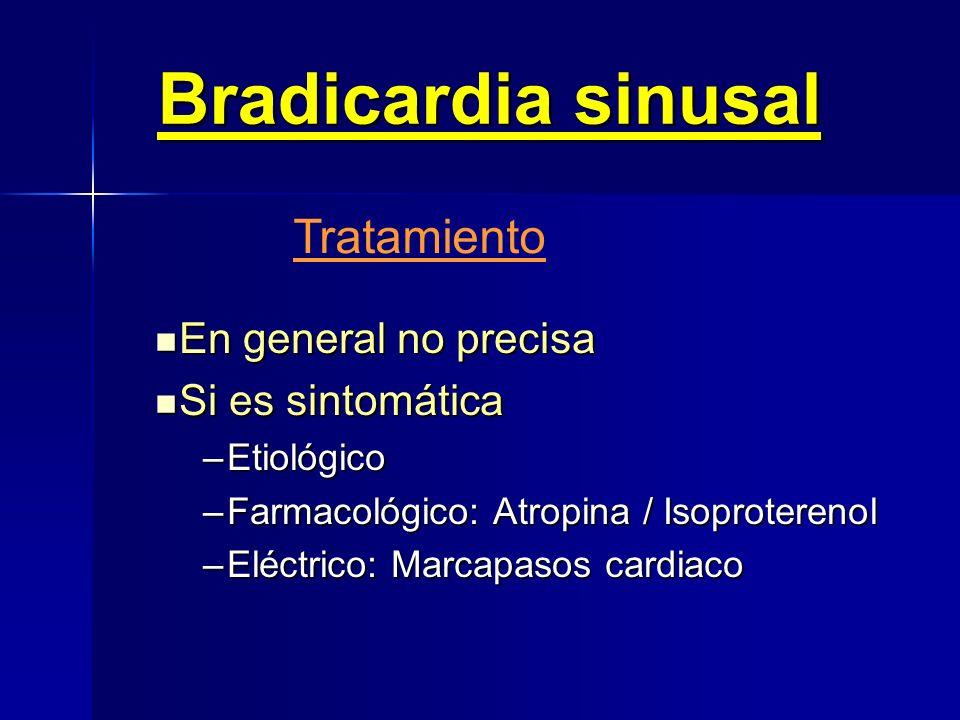 Bradicardia sinusal Electrocardiograma 1,156 segundos = 38 l.p.m.