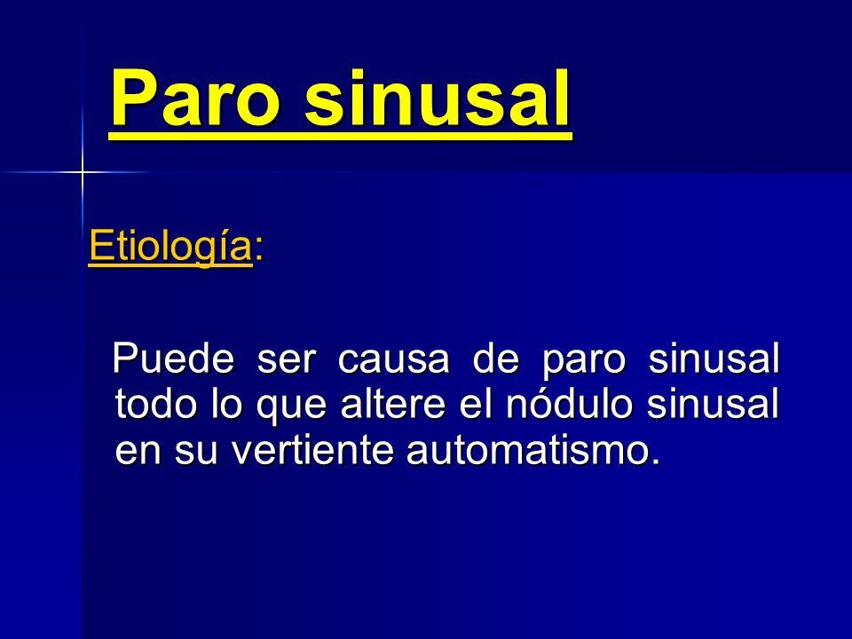 Paro sinusal Concepto: Cese de estímulos de origen sinusal por fallo en su producción. Tipos: Transitorio Transitorio Mantenido Mantenido
