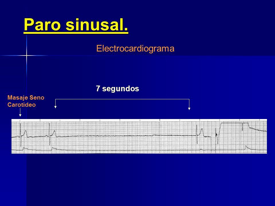 S S SSSS Nódulo Sinusal Unión Sino- auricular Aurícula PP PP P P 1,040 s 4,200 s1,040 s1,000 s Paro sinusal transitorio Electrocardiograma