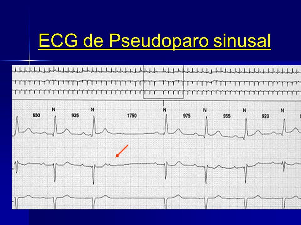 Paro sinusal. Masaje Seno Carotideo 7 segundos Electrocardiograma