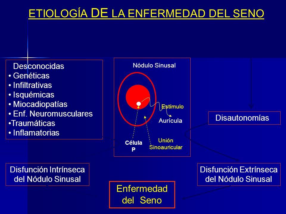 Enfermedad del Seno Sinónimos: Síndrome del Seno Enfermo Enfermedad del Nódulo Sinusal Síndrome Taquicardia-Bradicardia Concepto: Irene Ferrer en 1968