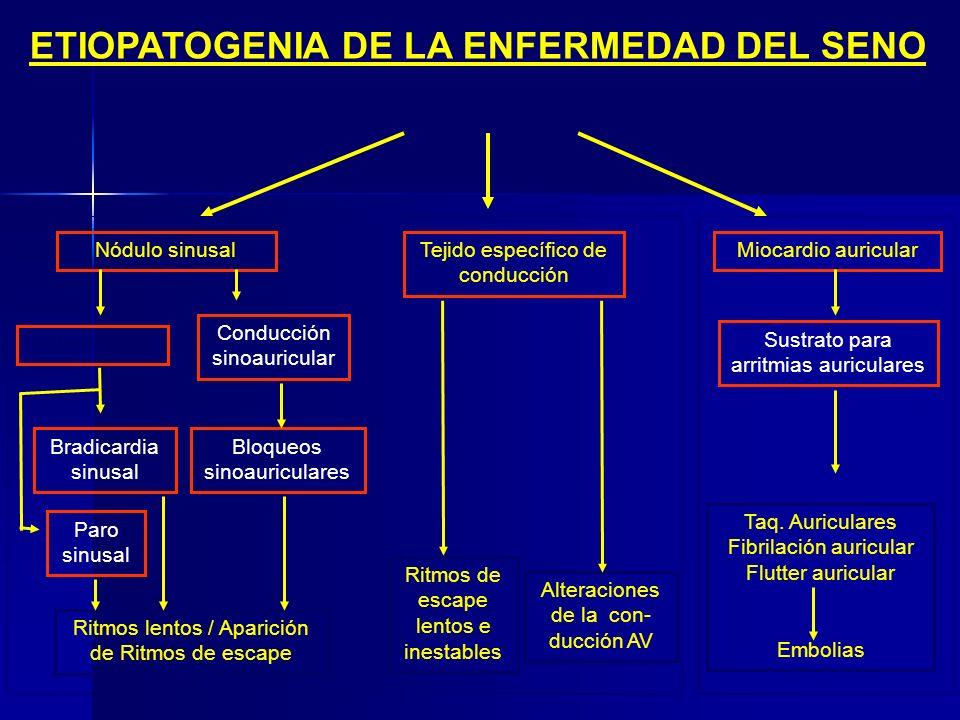 ETIOLOGÍA DE LA ENFERMEDAD DEL SENO Desconocidas Genéticas Infiltrativas Isquémicas Miocadiopatías Enf. Neuromusculares Traumáticas Inflamatorias CAUS
