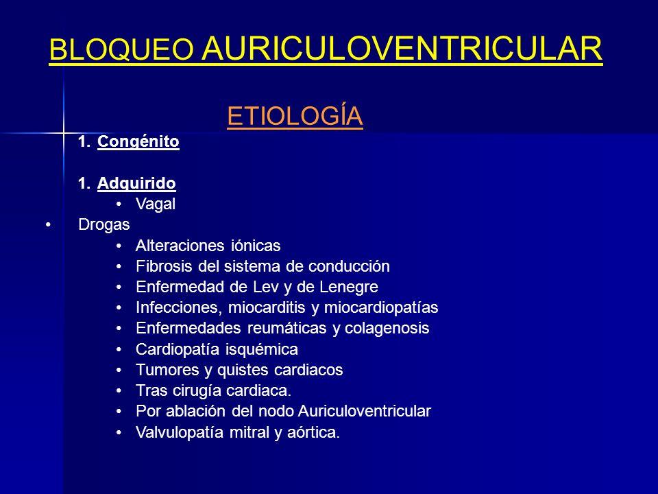BLOQUEO AURICULOVENTRICULAR Concepto Se entiende por bloqueo auriculoventricular al retraso o detención del paso de los estímulos, desde la musculatur