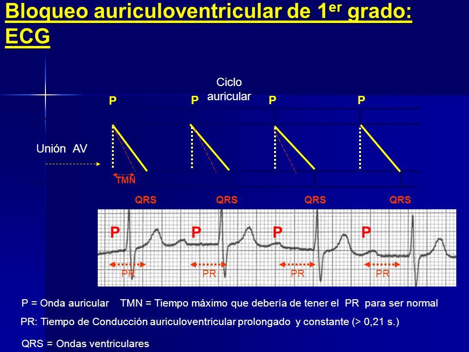 Manifestaciones Clínicas: Signos Los de primer grado Ninguno, en ocasiones apagamiento del primer ruido Los de segundo grado Pulso arterial y central