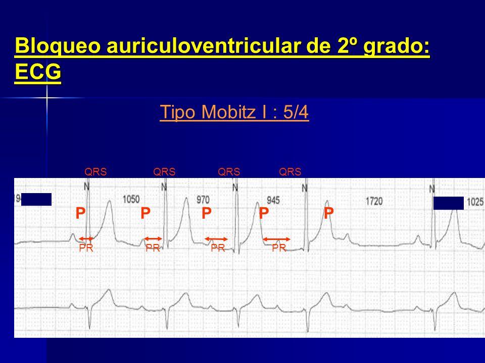 Bloqueo auriculoventricular de 2º grado: ECG PR: Tiempo de Conducción auriculoventricularP = Onda auricularQRS = Ondas ventriculares Ciclo auricular P