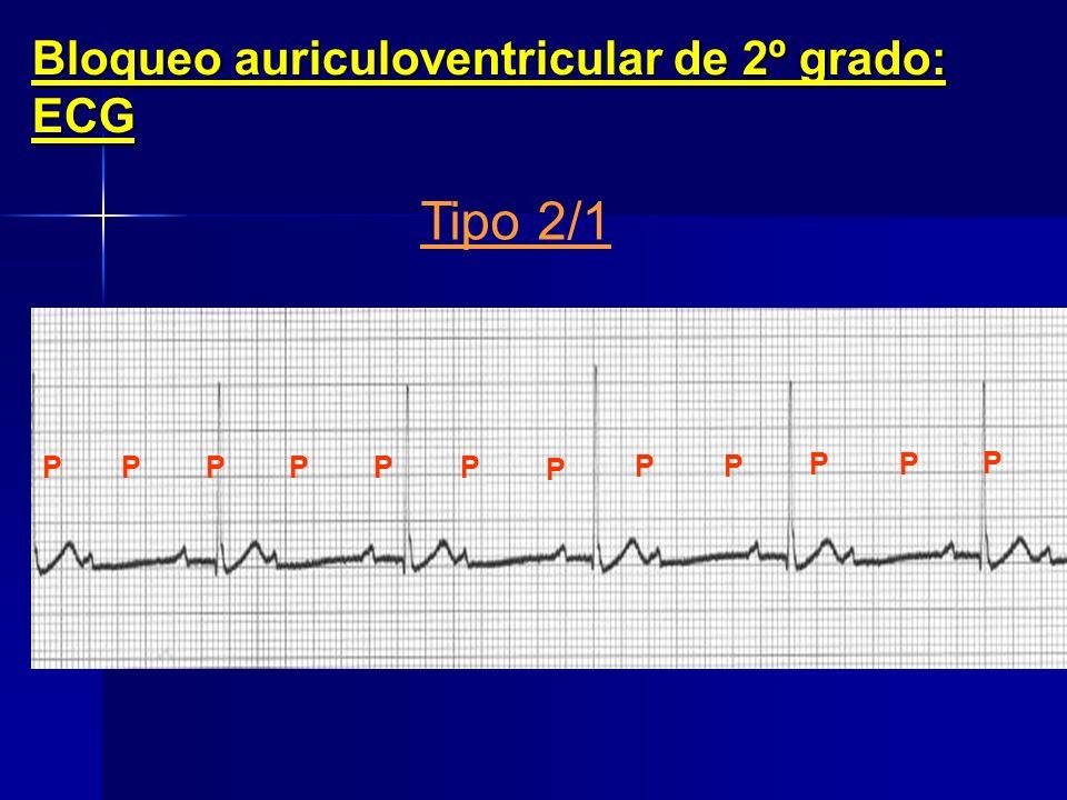 Bloqueo auriculoventricular de 2º grado: ECG Tipo Mobitz II P P PP