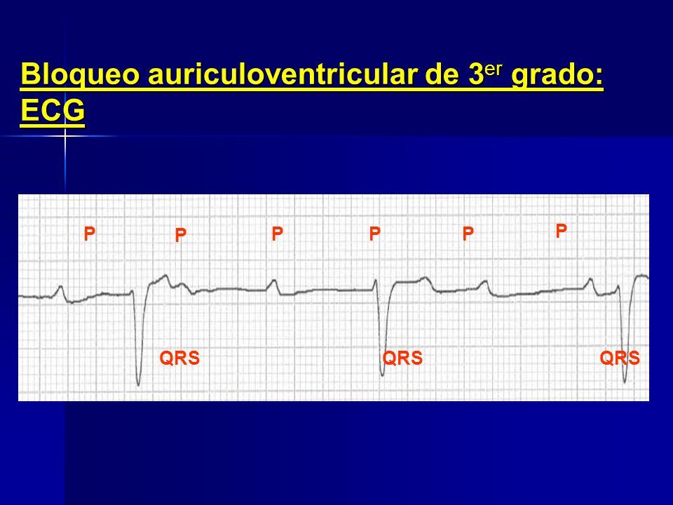 Bloqueo auriculoventricular de 2º grado: ECG Alto grado tipo 3/1 PPPP P PP P P P P P P QRS