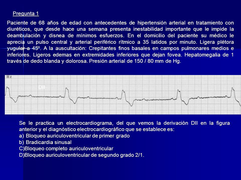 BRADIARRITMIAS – INDICACIONES DE MARCAPASOS TRANSITORIOS BRADICARDIAS CON COMPROMISO HEMODINAMICO. BRADICARDIAS CON COMPROMISO HEMODINAMICO. BRADICARD
