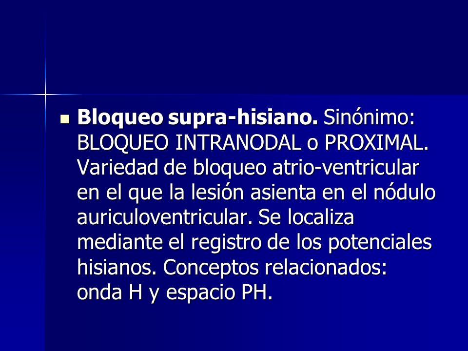 Bloqueo intra-hisiano. Sinónimo: BLOQUEO TRONCULAR. Variedad de bloqueo atrioventricular en el cual la lesión asienta a nivel del tronco común del fas