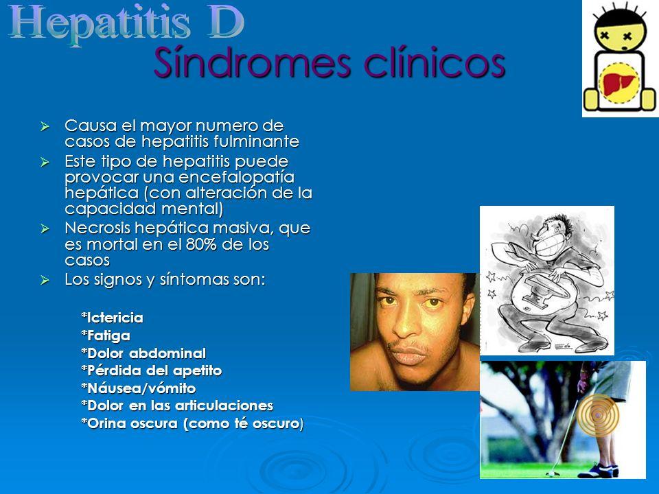 Síndromes clínicos Causa el mayor numero de casos de hepatitis fulminante Causa el mayor numero de casos de hepatitis fulminante Este tipo de hepatiti