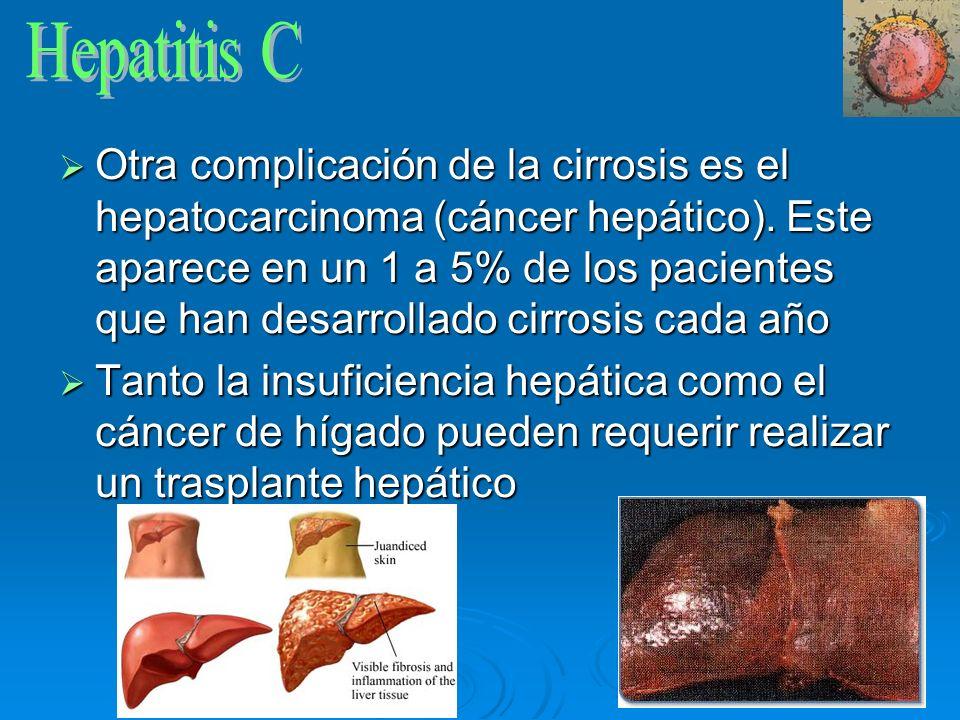 Otra complicación de la cirrosis es el hepatocarcinoma (cáncer hepático). Este aparece en un 1 a 5% de los pacientes que han desarrollado cirrosis cad