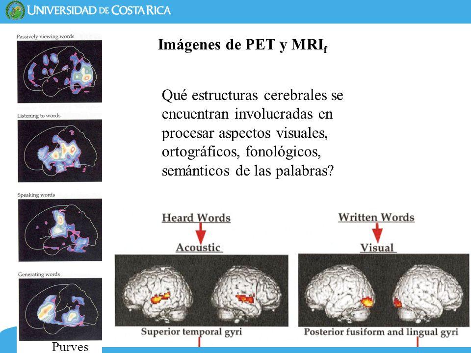 11 Imágenes de PET y MRI f Qué estructuras cerebrales se encuentran involucradas en procesar aspectos visuales, ortográficos, fonológicos, semánticos