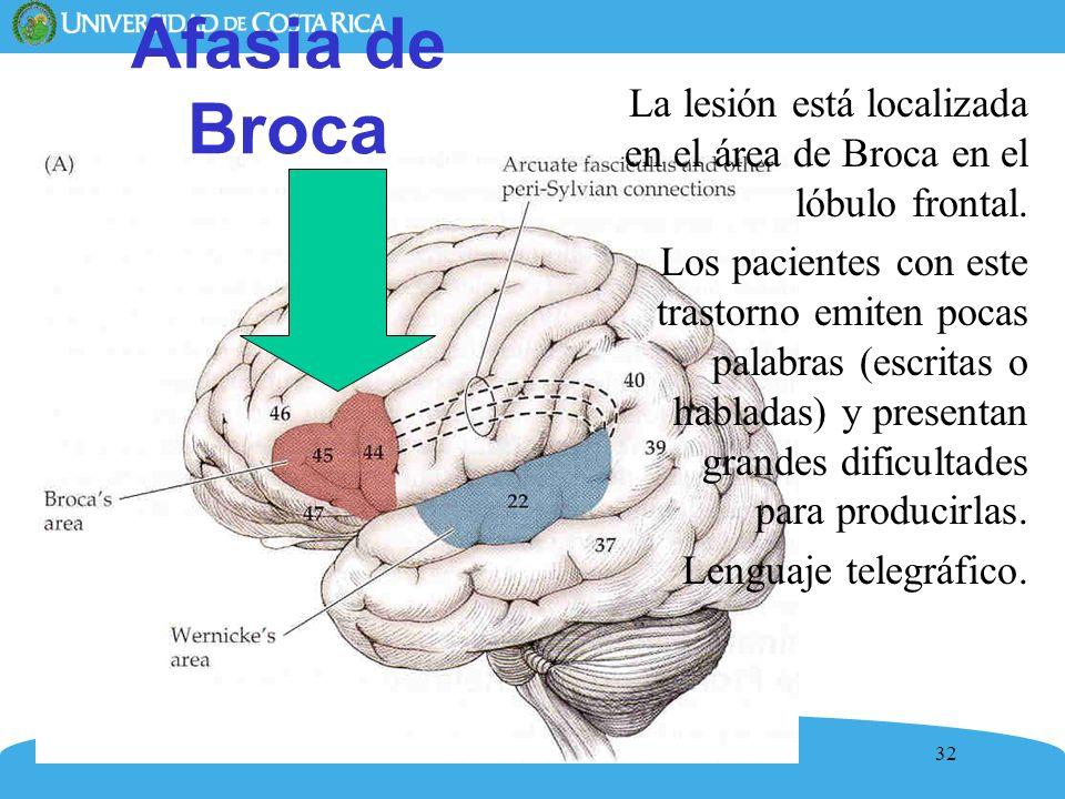 32 Afasia de Broca La lesión está localizada en el área de Broca en el lóbulo frontal. Los pacientes con este trastorno emiten pocas palabras (escrita