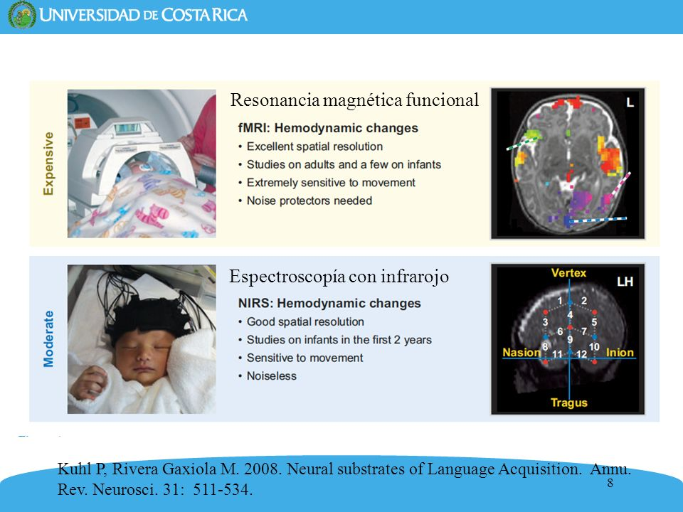 8 Resonancia magnética funcional Espectroscopía con infrarojo Kuhl P, Rivera Gaxiola M. 2008. Neural substrates of Language Acquisition. Annu. Rev. Ne