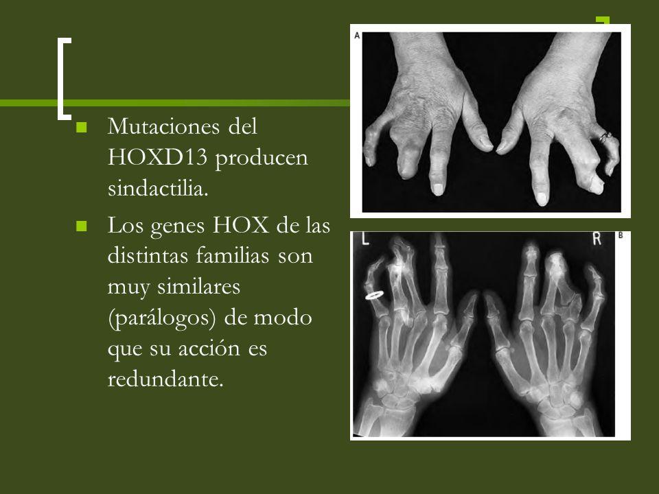 Mutaciones del HOXD13 producen sindactilia. Los genes HOX de las distintas familias son muy similares (parálogos) de modo que su acción es redundante.