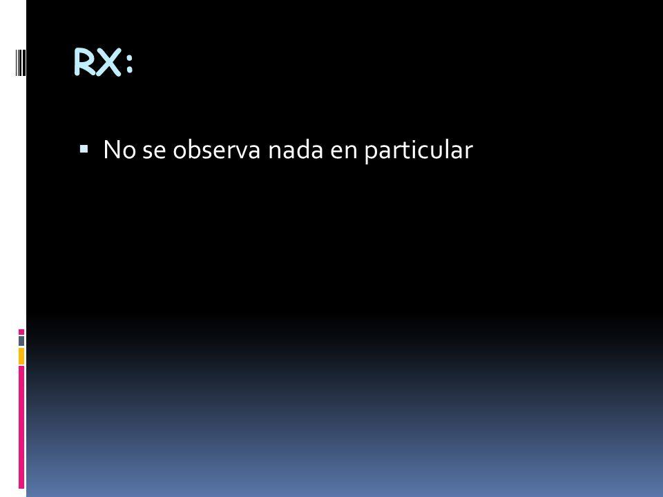 RX: No se observa nada en particular
