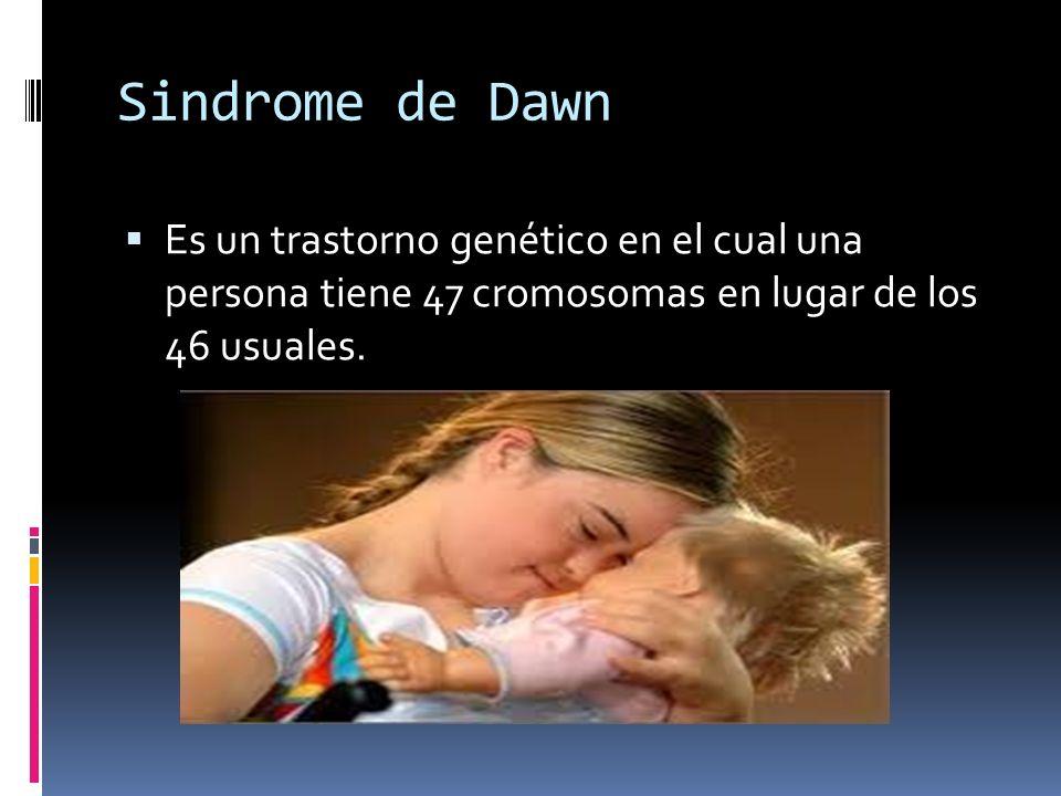 Sindrome de Dawn Es un trastorno genético en el cual una persona tiene 47 cromosomas en lugar de los 46 usuales.