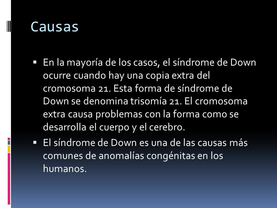 Causas En la mayoría de los casos, el síndrome de Down ocurre cuando hay una copia extra del cromosoma 21. Esta forma de síndrome de Down se denomina