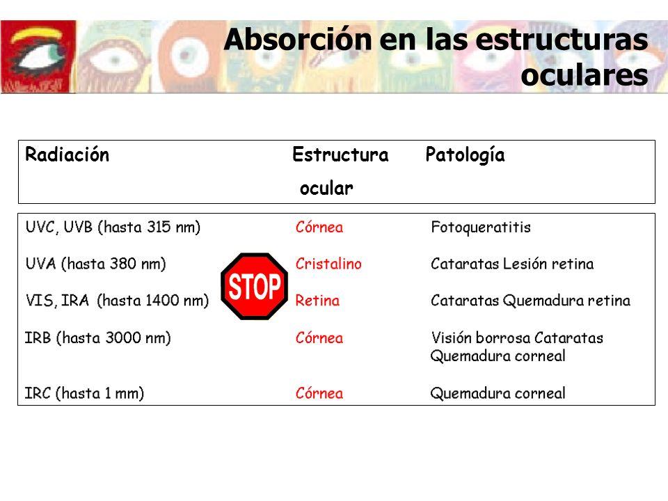 LONGITUD DE ONDA FUENTESLUGAR DE LA LESIÓN OCULAR LESIÓN UV-C (200- 280) -LUZ SOLAR -LAMPARAS DE ARCO EPITELIO CORNEAL-FOFOQUERATITIS Y/O OPACIDAD CORNEAL UV-B (280- 315) -LÁSER EXCIMER -LUZ SOLAR -LÁMPARAS SOLARES -ARCO DE SOLDAR -EPITELIO CORNEAL -EPITELIO Y NÚCLEO DEL CRISTALINO -FOTOQUERATITIS Y/O OPACIDAD CORNEAL -CATARATAS UV-A (315- 400) -LUZ SOLAR -LÁMPARA SOLAR -CAMAS SOLARES -LÁSER -EPITELIO Y NÚCLEO DEL CRISTALINO -CATARATA Efectos de la radiación ULTRAVIOLETA