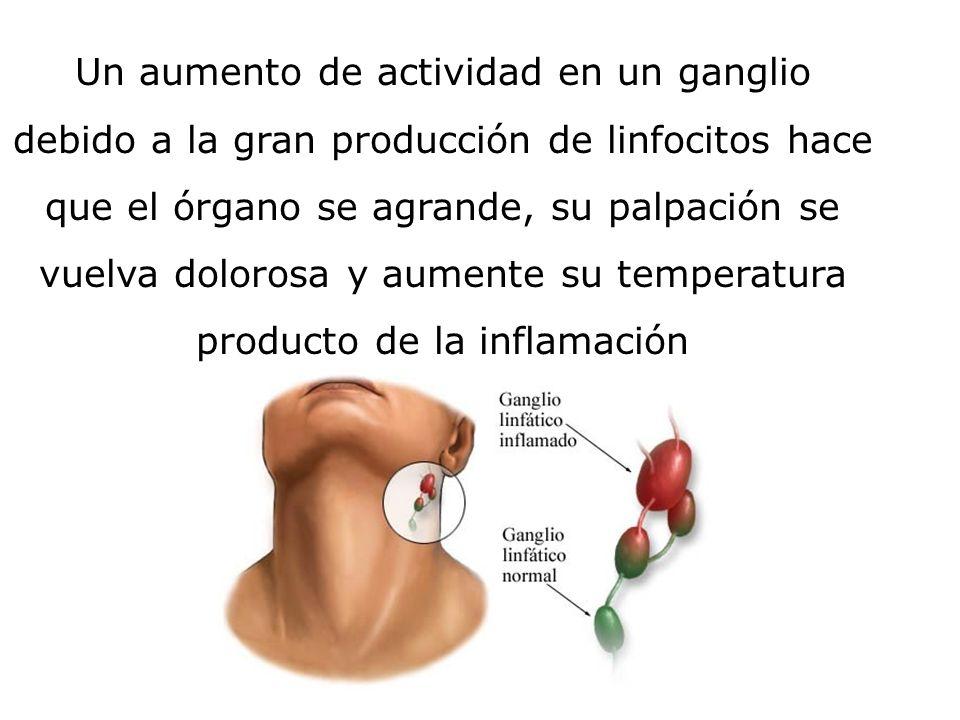 Un aumento de actividad en un ganglio debido a la gran producción de linfocitos hace que el órgano se agrande, su palpación se vuelva dolorosa y aumen