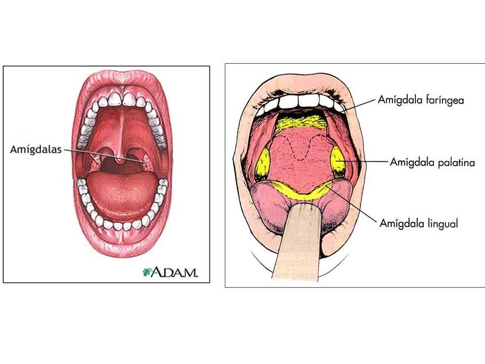 La inflamación de las amígdalas (amigdalitis o anginas) es un fenómeno que puede ocurrir a cualquier edad, aunque es más frecuente durante la infancia La amigdalitis se presenta con fiebre, decaimiento y dolor al tragar
