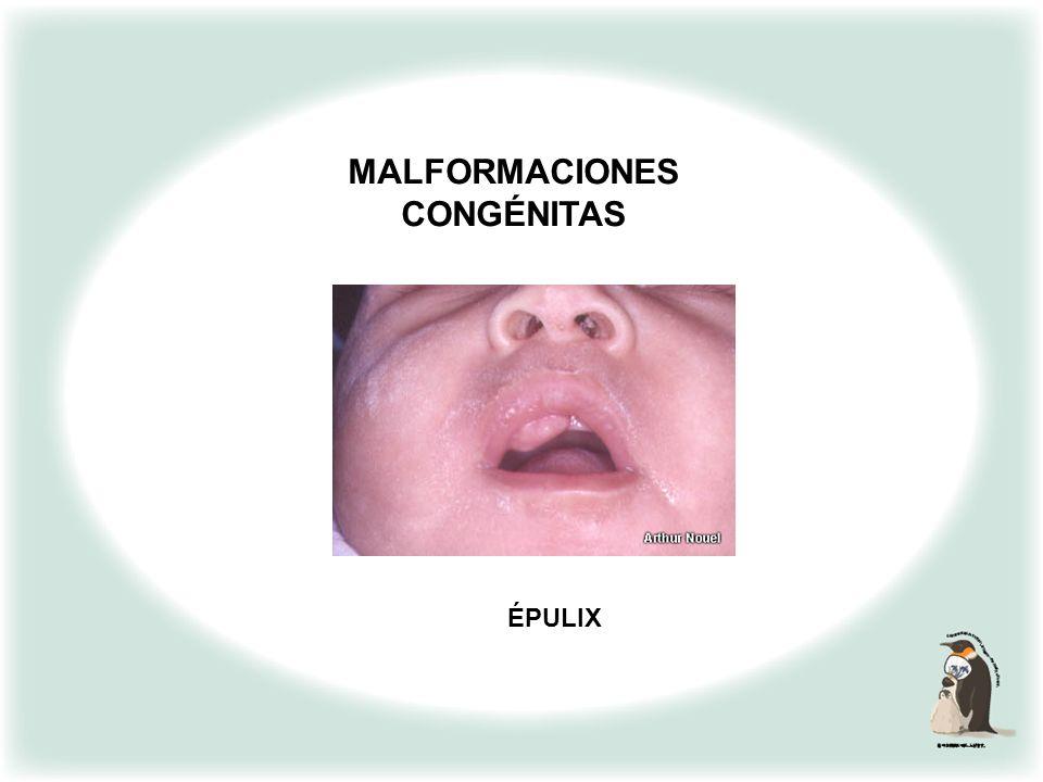 PARAMETROSDIFERENTES ETAPAS DE LA MADUREZ DEL NEONATO - PUNTUACION Textura de la piel (T.P). Gelatinosa 0 Fina y lisa 5 Algo más gruesa, discreta desc
