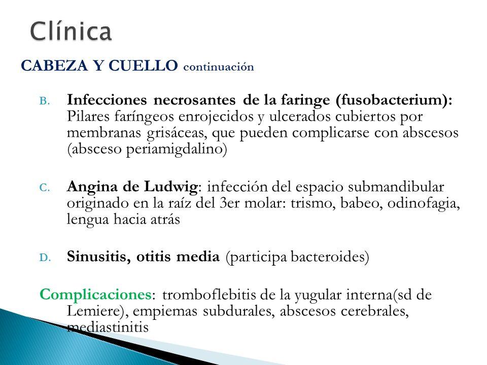 CABEZA Y CUELLO continuación B. Infecciones necrosantes de la faringe (fusobacterium): Pilares faríngeos enrojecidos y ulcerados cubiertos por membran