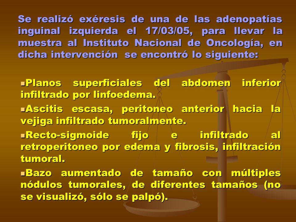 Se realizó exéresis de una de las adenopatías inguinal izquierda el 17/03/05, para llevar la muestra al Instituto Nacional de Oncología, en dicha inte