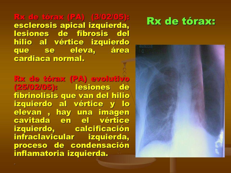 Rx de tórax: Rx de tórax (PA) (3/02/05): esclerosis apical izquierda, lesiones de fibrosis del hilio al vértice izquierdo que se eleva, área cardiaca