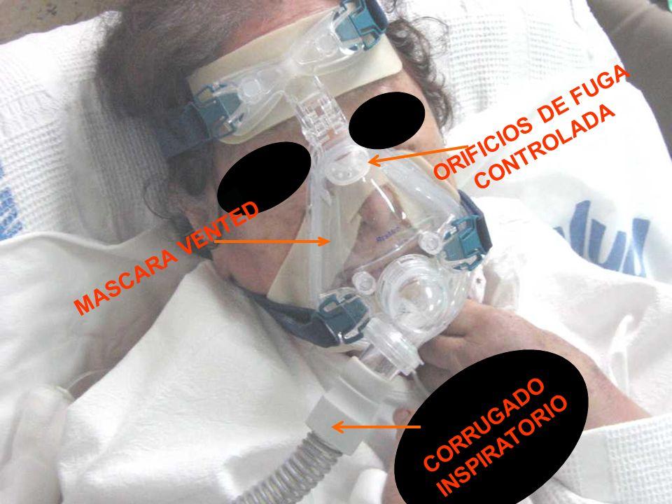 CORRUGADO INSPIRATORIO MASCARA VENTED ORIFICIOS DE FUGA CONTROLADA