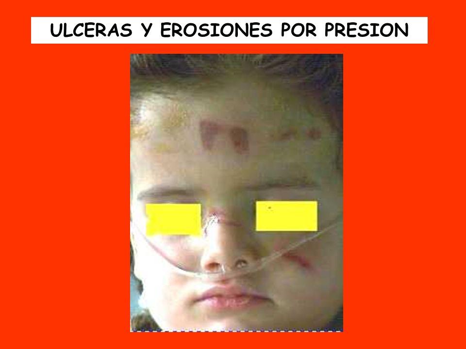 ULCERAS Y EROSIONES POR PRESION