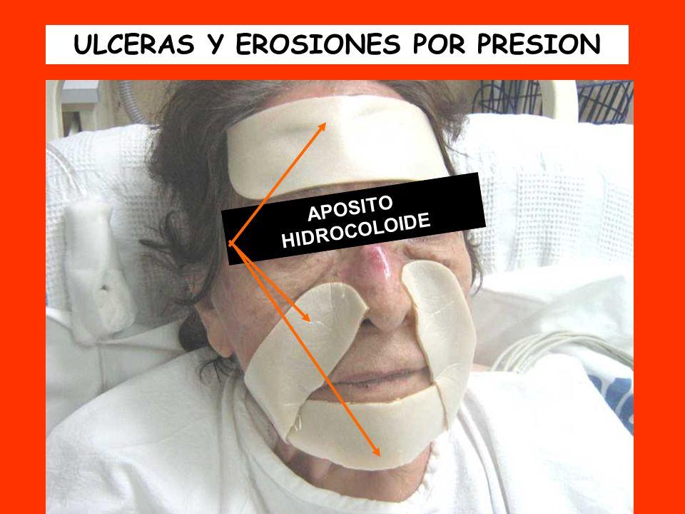 APOSITO HIDROCOLOIDE ULCERAS Y EROSIONES POR PRESION