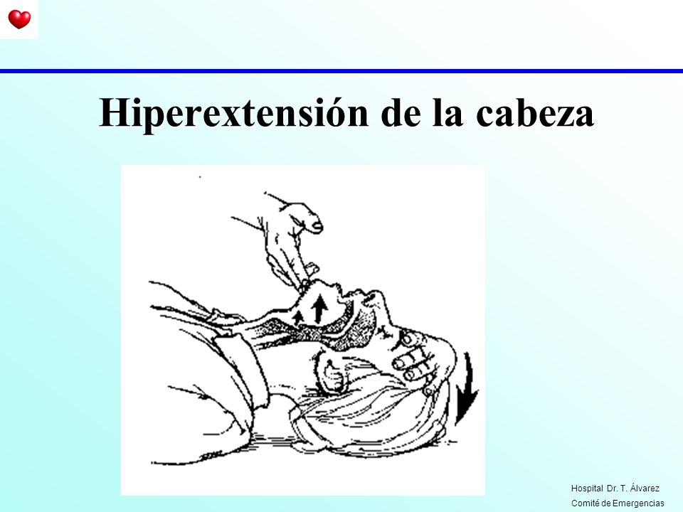 Hiperextensión de la cabeza Hospital Dr. T. Álvarez Comité de Emergencias