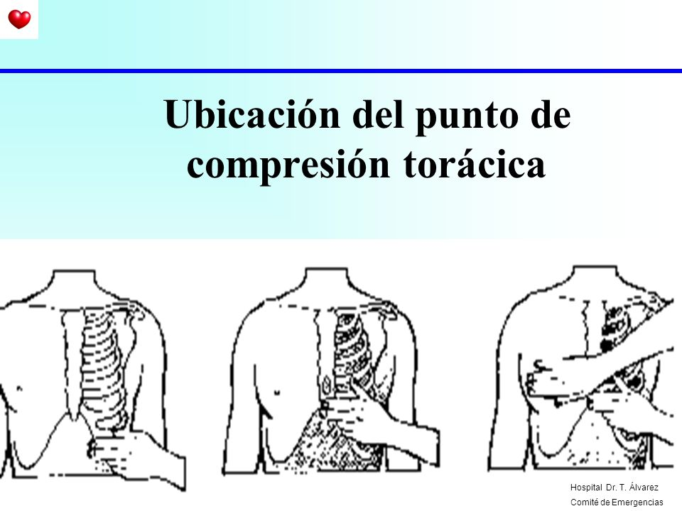 Ubicación del punto de compresión torácica Hospital Dr. T. Álvarez Comité de Emergencias