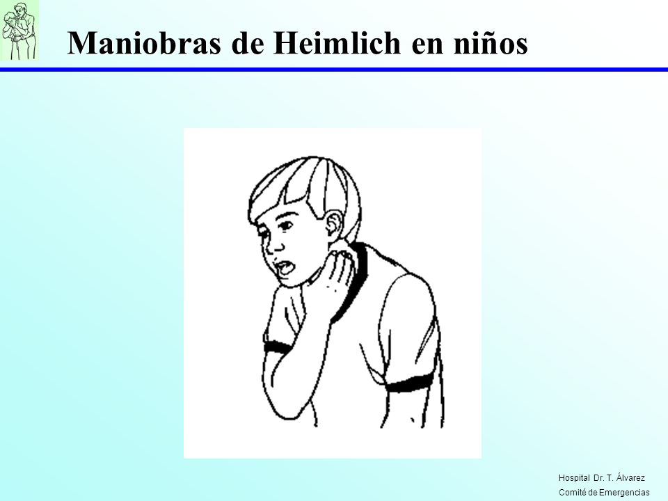 Maniobras de Heimlich en niños Hospital Dr. T. Álvarez Comité de Emergencias