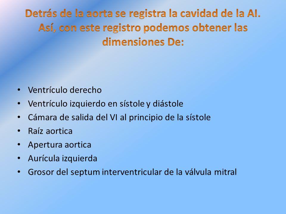 Ventrículo derecho Ventrículo izquierdo en sístole y diástole Cámara de salida del VI al principio de la sístole Raíz aortica Apertura aortica Aurícul