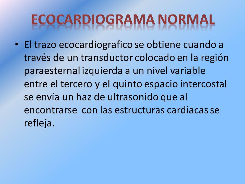 El trazo ecocardiografico se obtiene cuando a través de un transductor colocado en la región paraesternal izquierda a un nivel variable entre el terce