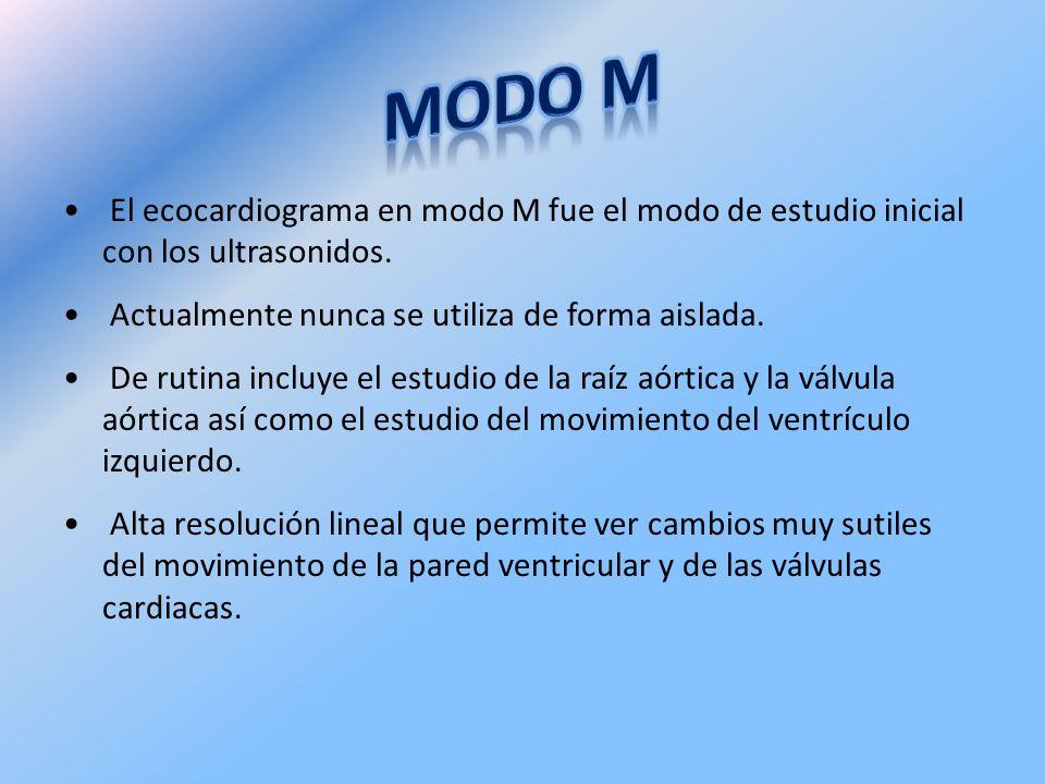 El ecocardiograma en modo M fue el modo de estudio inicial con los ultrasonidos. Actualmente nunca se utiliza de forma aislada. De rutina incluye el e