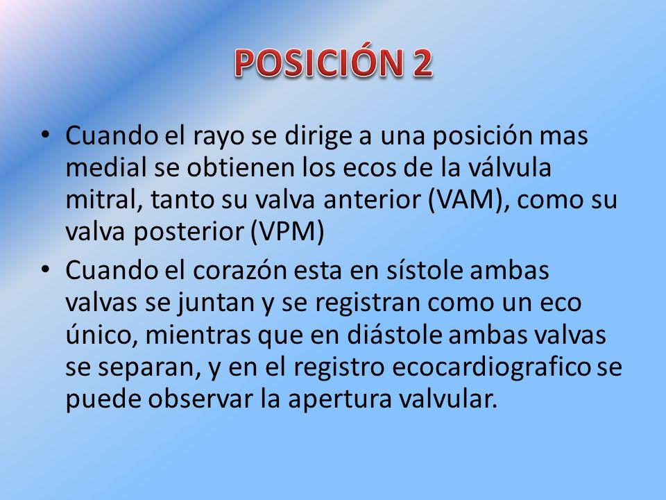 Cuando el rayo se dirige a una posición mas medial se obtienen los ecos de la válvula mitral, tanto su valva anterior (VAM), como su valva posterior (